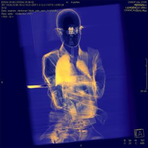 X-ray-christopher