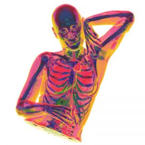 X-ray-domi-chest