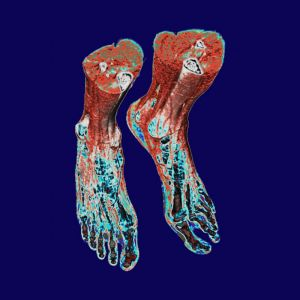 X-ray-right-feet